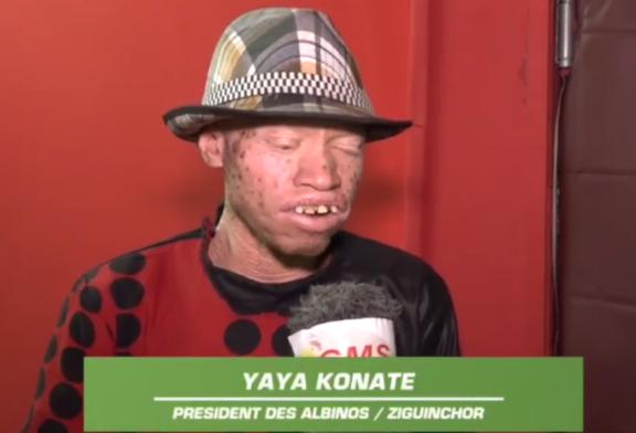 POLITIQUE: Le président de l'association des albinos de Ziguinchor craint pour la vie de cette couche vulnérable
